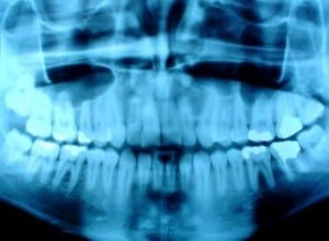 teeth xrays