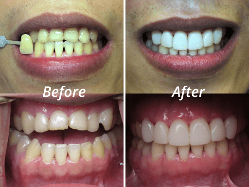 composite veneers before and after photos